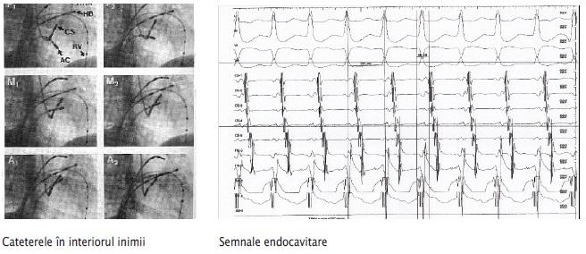 Aritmiile_cardiace_1