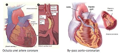 Bolile arterelor coronare
