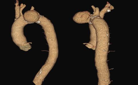 Reconstrucţie volumetrică 3D dupa angioCT-ul diagnostic în incidenţă oblică stângă și laterală, înainte de fisurarea anevrismului