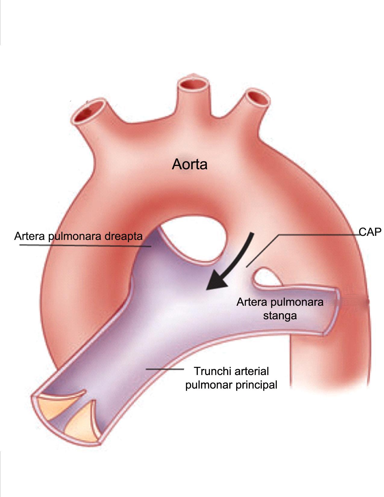 canal-arterial-permeabil1