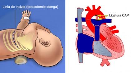 canal-arterial-permeabil2