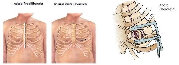 fig_4_cardiaca
