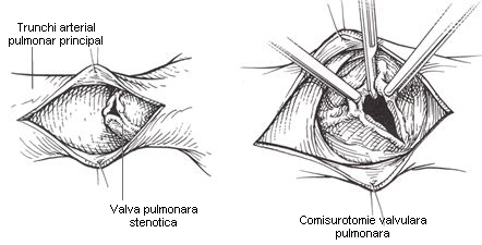 stenoza-valvulara-pulmonara-2
