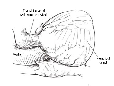 stenoza-valvulara-pulmonara-3