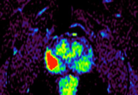 Cancerul de prostata la monza