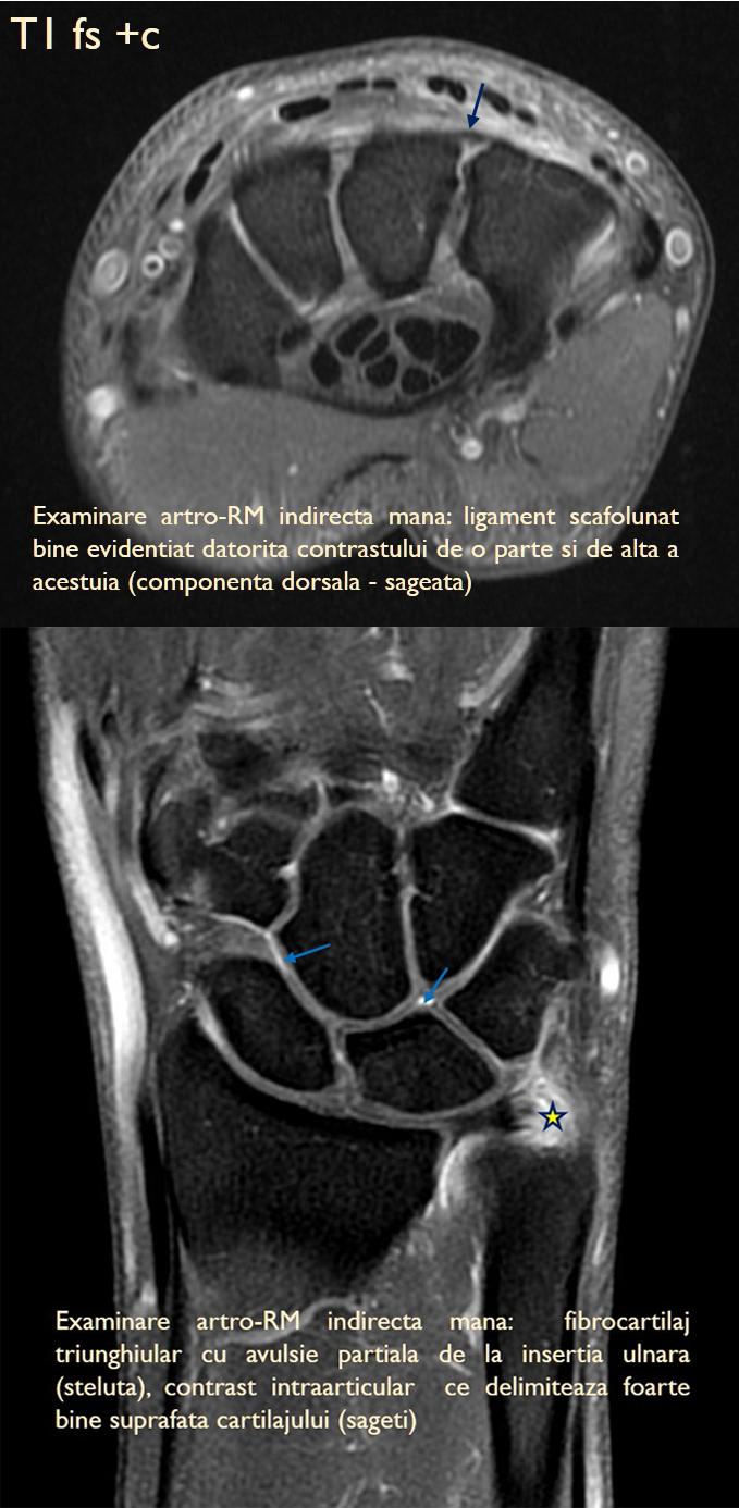 tratament de articulație prin rezonanță magnetică)