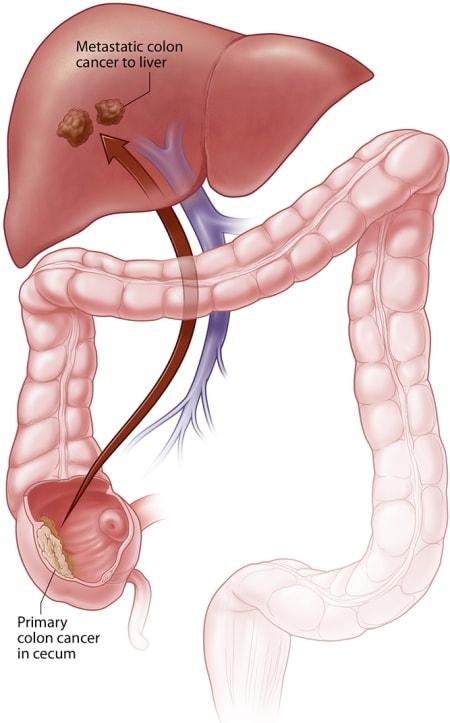 Cancer de colon: Simptomele specifice, diagnostic, tratament | Bioclinica