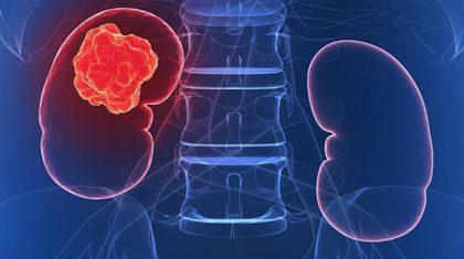 cancer renal si de rinichi