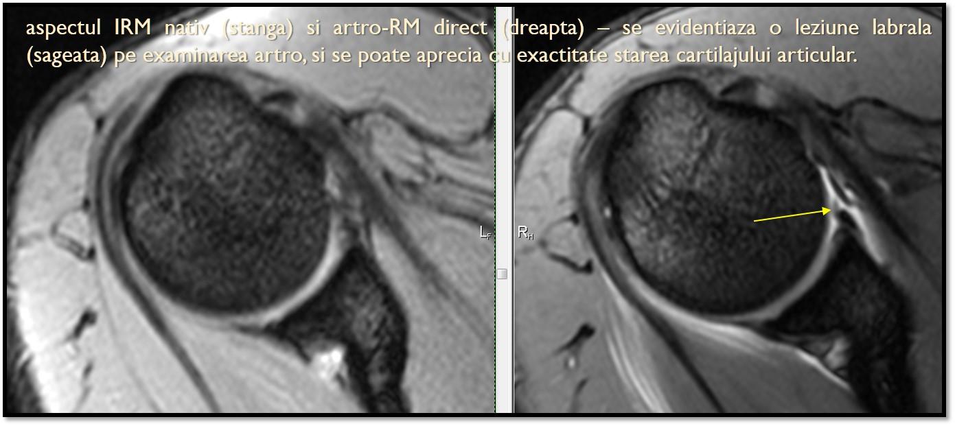 tratament de articulație prin rezonanță magnetică