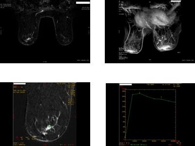 Pacienta P.S. 37 ani- CDIS (tumorectomie cu margini de rezectie pozitive)