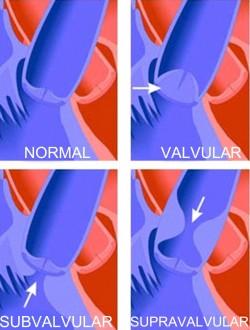 stenozele aortice